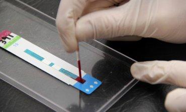 Harán controles rápidos de VIH en la Plaza 12 de Octubre